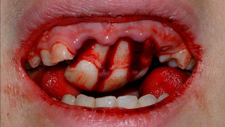 تا یک ساعت پس از تروما شانس زنده ماندن دندان ها وجود دارد